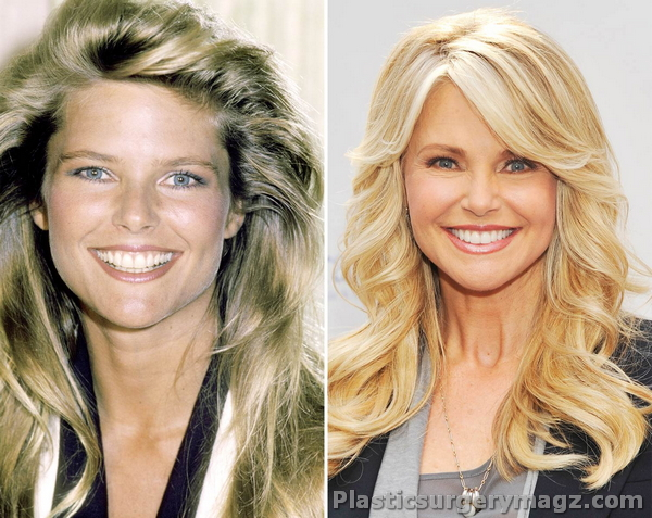 Can recommend christie brinkley plastic surgery