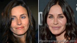 Courteney Cox Plastic Surgery Before & After