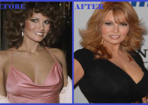 Raquel Welch Before & After Surgery