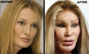 jocelyn wildenstein Before & After plastic surgery