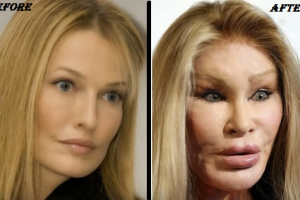 jocelyn wildenstein Before & After plastic surgery