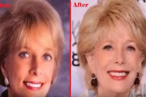 leslie stahl plastic surgery Before & After
