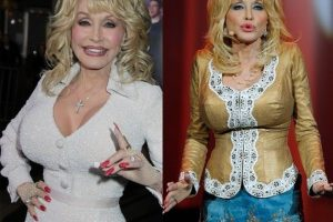 Dolly Parton Liposuction